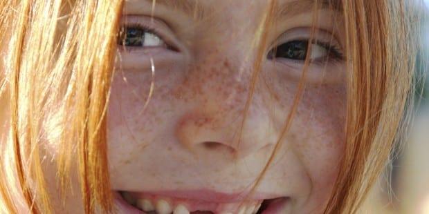 Mädchen_Zahnlücke